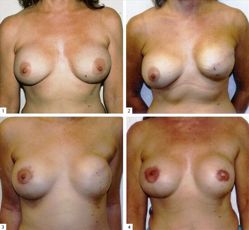 Consider, Breast reconstruction surgeon