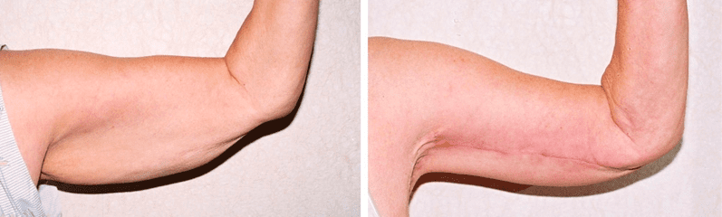 upper arm lift before and after pictures