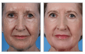 Treatment with the Sciton® Laser