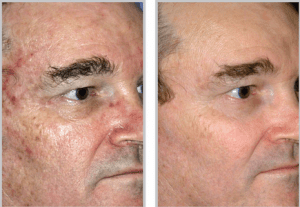 Sciton® Laser Skin Resurfacing