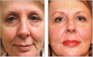 Sciton® Laser Skin Resurfacing