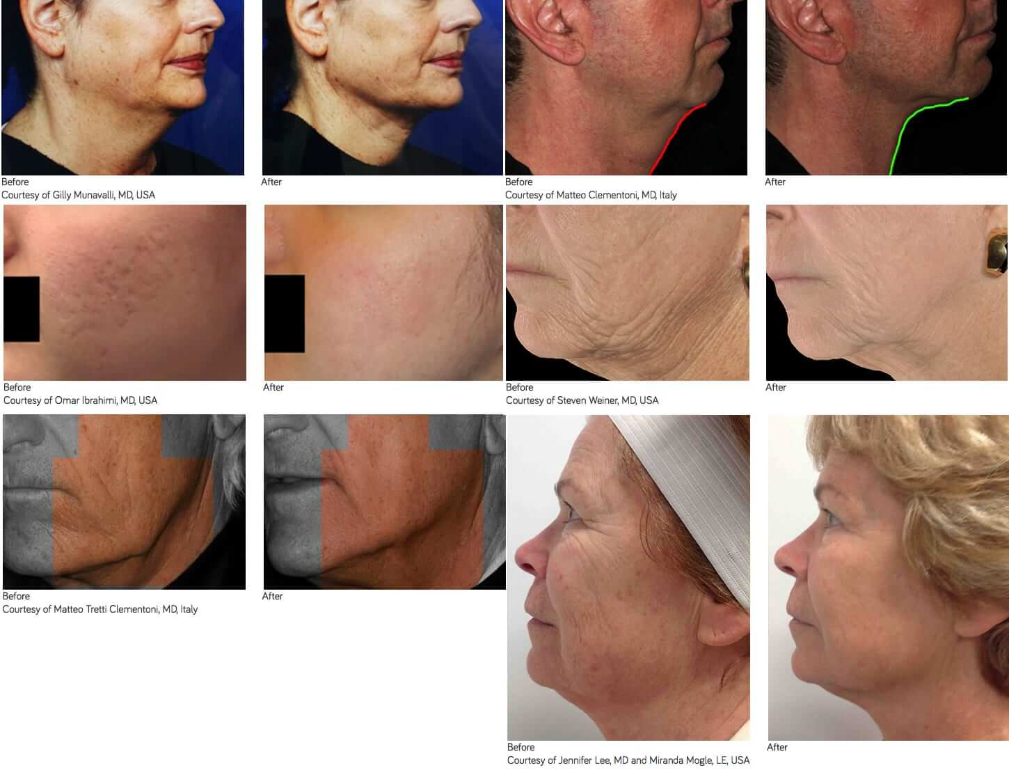 Infini Laser - before and after pictures