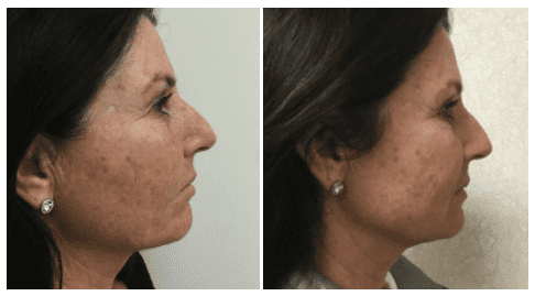 INFINI™ Before and After Photo
