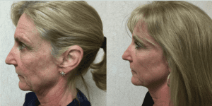 Before and After INFINI™ Laser