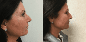 before-and-after-infini-laser