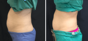 before-and-after-sculpsure