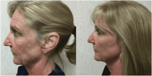 INFINI™ Laser Results