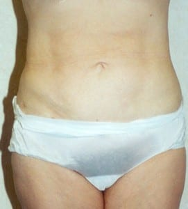 Liposuction Patient Before and After photo by Dr. Wald