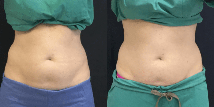 SculpSure® Before and After Photos