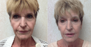 Laser therapy to peri ocular and peri oral areas by Dr. Wald