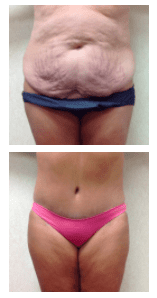 Wald Body Contouring Surgery Tummy Tuck