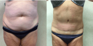 Wald Patient Tummy Tuck. Before and After