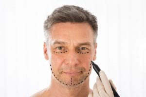 Close up Of Surgeon Hands Drawing Correction Lines On Man Face