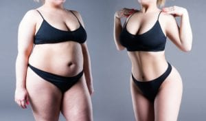 body before and after weight loss-img-blog