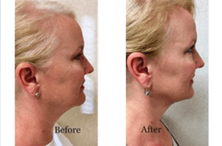 liposuction-11-before-after-img-blog