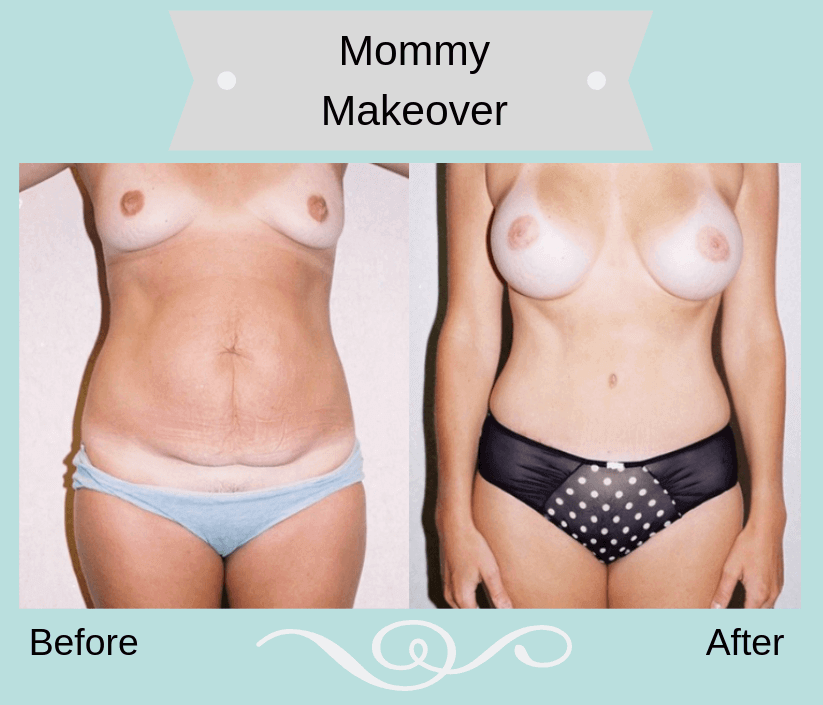 Mommy Makeover before and after photo