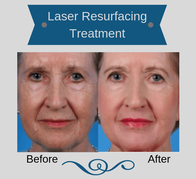 Woman before and after laser resurfacing treatment
