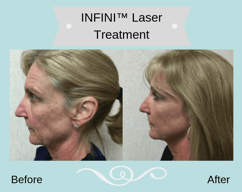 Woman before and after facial laser treatment