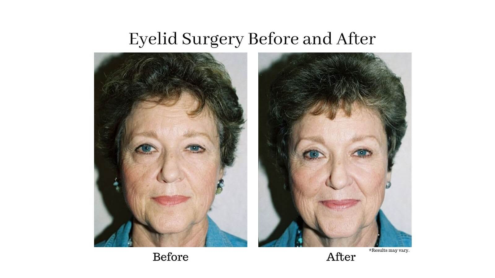 A woman before and after her eyelid surgery. Her eyes are brighter and more lively after removing excess tissue.