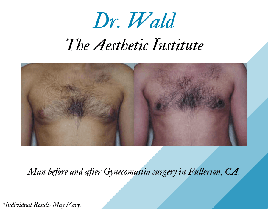 Male before and after facelift, neck lift, and bilateral lower blepharoplasty in Fullerton, CA, at the Aesthetic Institute.